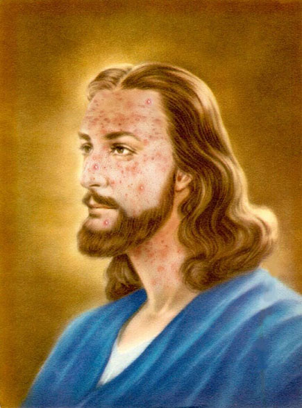 Jesus struggled with acne and math