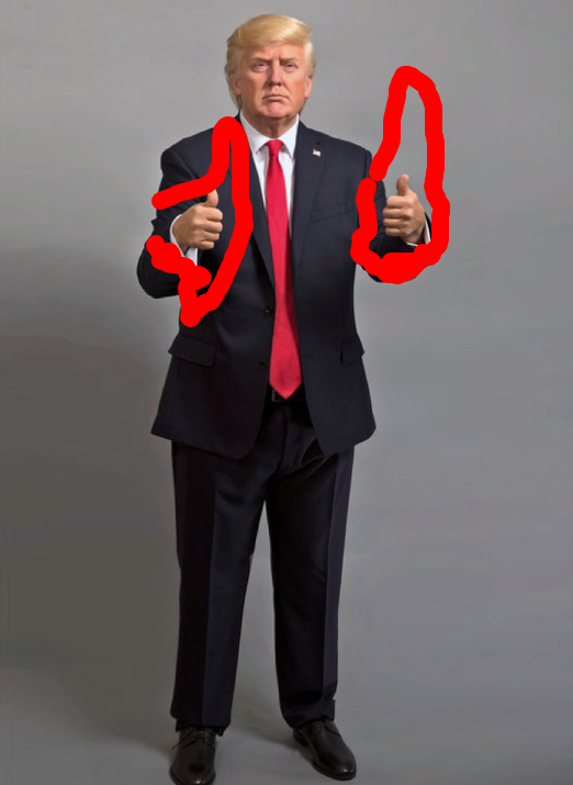 Trump with enlarged hands